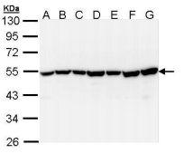 TID1 Antibody (PA5-29225)
