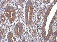 PPM1A Antibody (PA5-29275)