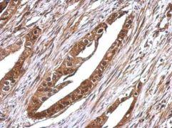 RUVBL1 Antibody (PA5-29278)