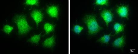 IKK epsilon Antibody (PA5-29294)