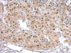 ZAK Antibody (PA5-29317)