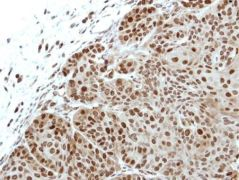 FASTKD3 Antibody (PA5-29318)