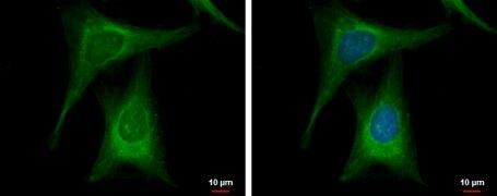 Glucokinase Antibody (PA5-29325)