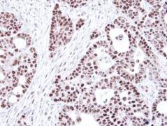 MSH6 Antibody (PA5-29348)