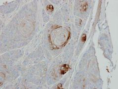 TRIB1 Antibody (PA5-29407)