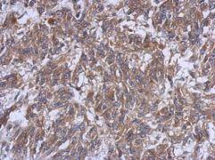 HERPUD1 Antibody (PA5-29469)