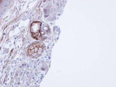 CEACAM6 Antibody (PA5-29551)