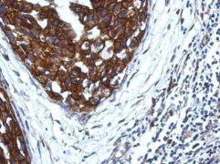 KIR2DS4 Antibody (PA5-29577)