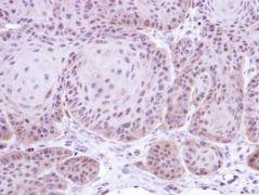 DAXX Antibody (PA5-29592)