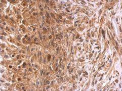 GSTP1 Antibody (PA5-29601)