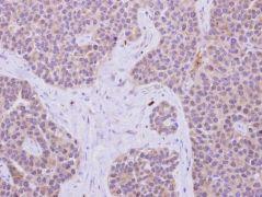 IRS1 Antibody (PA5-29667)