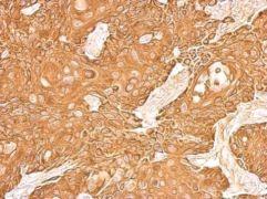 Cytokeratin 5 Antibody (PA5-29670)