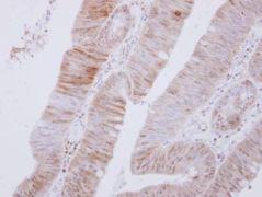 AMPK alpha-2 Antibody (PA5-29679)