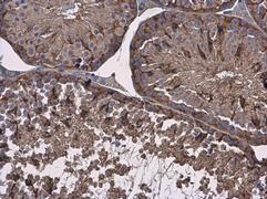 Vinculin Antibody (PA5-29688)