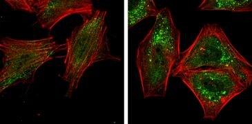 ATG5 Antibody (PA5-29694)