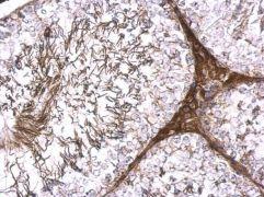 Glutamine Synthetase Antibody (PA5-29737)