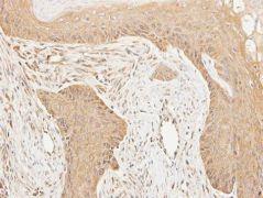 Cortactin Antibody (PA5-29799)