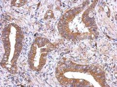 VEGFD Antibody (PA5-29806)