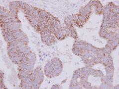 MAOB Antibody (PA5-29824)