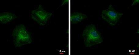 PTK7 Antibody (PA5-29839)