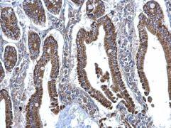 SDHB Antibody (PA5-29843)