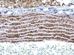 TPM1 Antibody (PA5-29846)