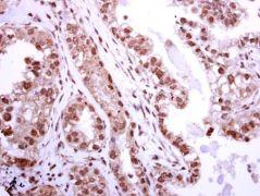 BRIP1 Antibody (PA5-29889)