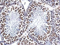 EWSR1 Antibody (PA5-29905)