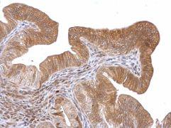 ROBO1 Antibody (PA5-29917)