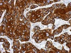Cytokeratin 17 Antibody (PA5-29919)