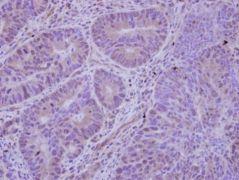 HDAC7 Antibody (PA5-29937)