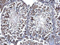 SUFU Antibody (PA5-29952)