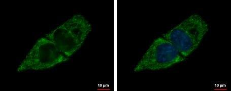 SBCAD Antibody (PA5-29958)