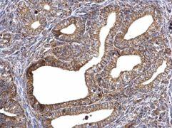 ATP Synthase gamma Antibody (PA5-29975)