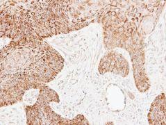 ECH1 Antibody (PA5-30012)