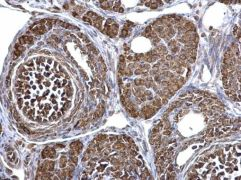 ECHS1 Antibody (PA5-30014)