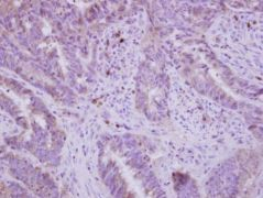 FADS1 Antibody (PA5-30080)