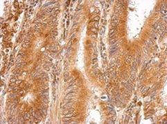 LMAN1 Antibody (PA5-30081)