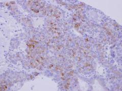 Nidogen Antibody (PA5-30103)