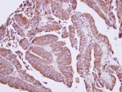Coronin 2A Antibody (PA5-30206)