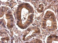 eIF4A1 Antibody (PA5-30216)