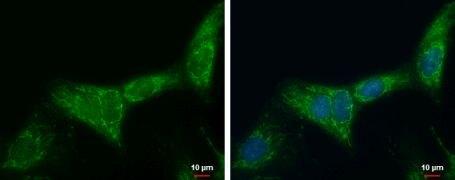 ATP Synthase B1 Antibody (PA5-30236)