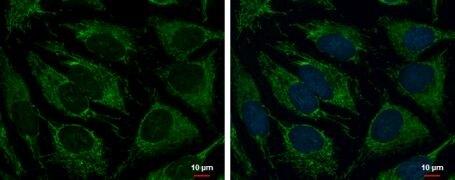 TRAP1 Antibody (PA5-30358)