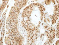 PHAPI2 Antibody (PA5-30390)