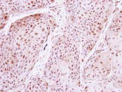 DDX19B Antibody (PA5-30439)