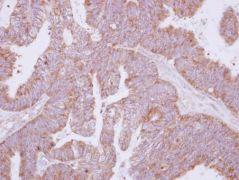 ATG4B Antibody (PA5-30462)