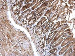 EDC4 Antibody (PA5-30485)