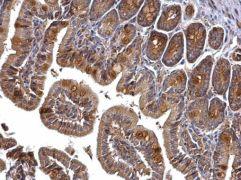 PRMT5 Antibody (PA5-30576)