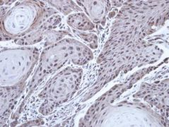 FANCD2 Antibody (PA5-30592)