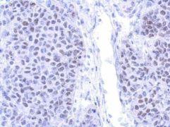 PIASy Antibody (PA5-30628)